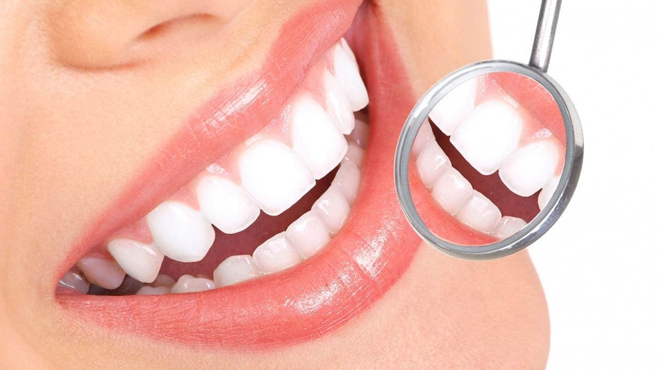 Anomalie di colore e forma dei denti
